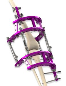Indications-Gallery-Knee-Fusion-03