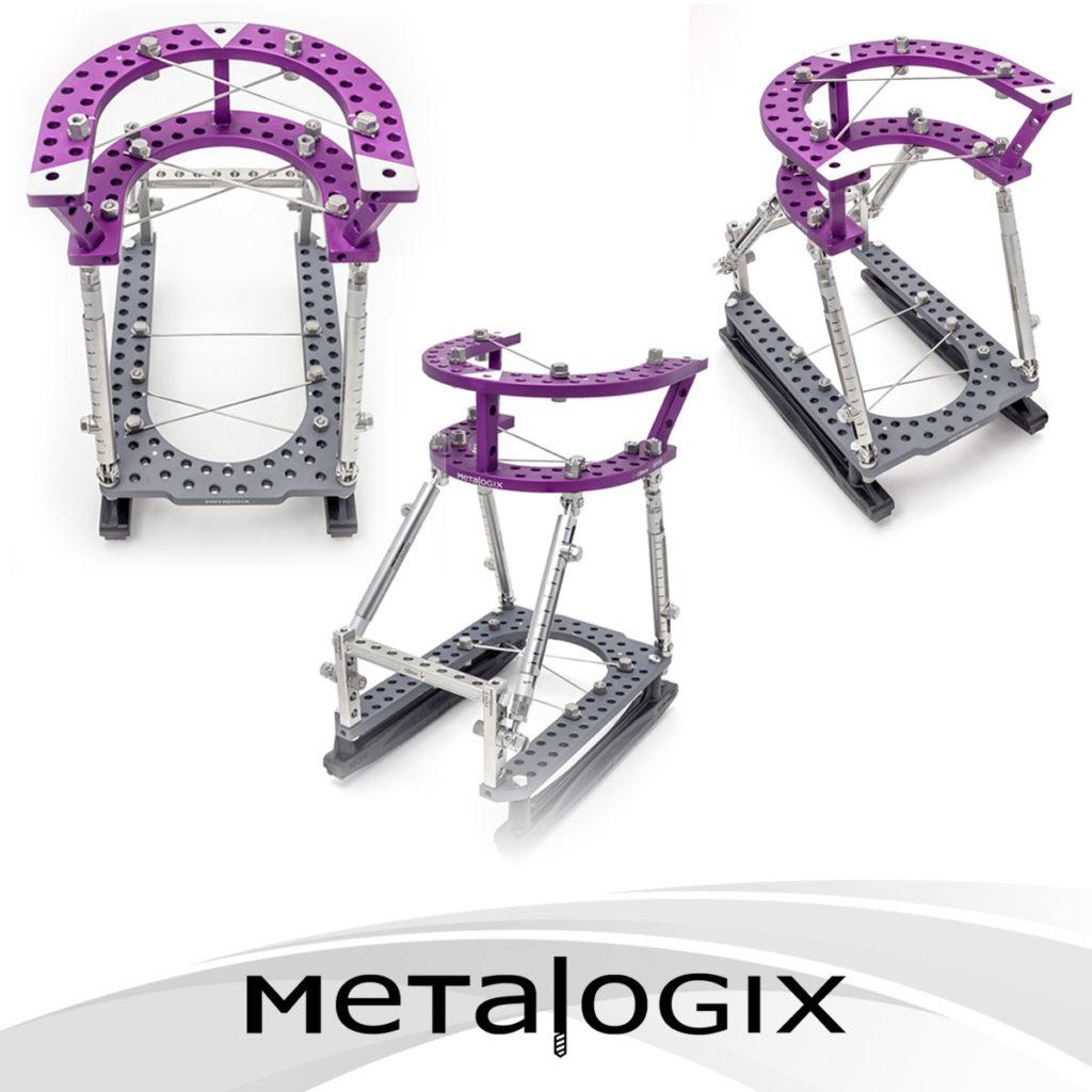 Metalogix External Fixation System Charcot Construct