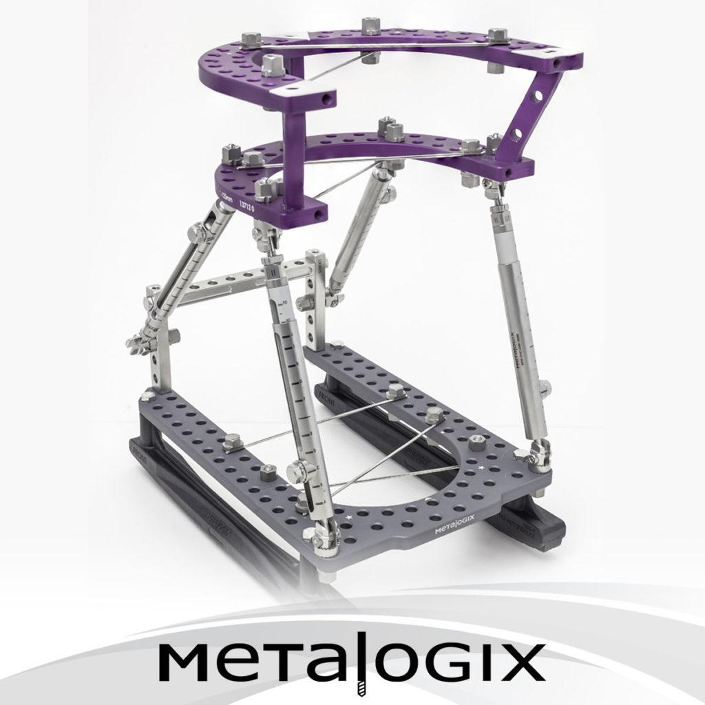 Metalogix Revolution External Fixation System