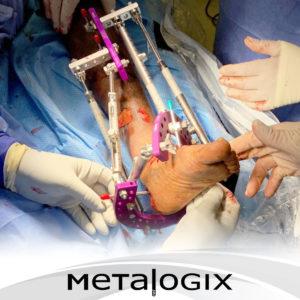 Pilon Metalogix Revolution External Plating System